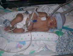 Допомога при асфіксії новонароджених