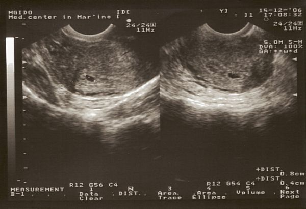Що відбувається в перші дні вагітності?