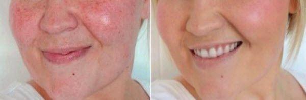 живильні маски для сухої шкіри