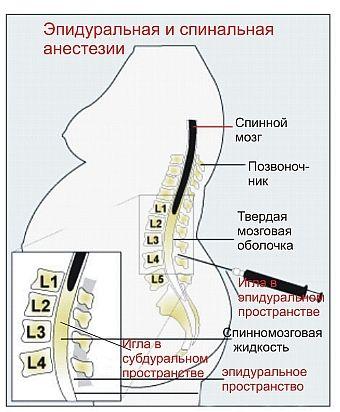 епідуральна анестезія
