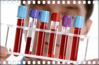 Загальний аналіз крові у дитини - розшифровка таємничих знаків