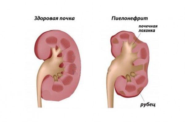 Особливості гестаційного пієлонефриту при вагітності