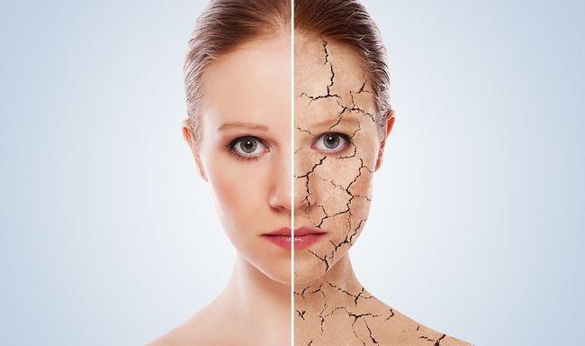 Особливості догляду за сухою шкірою обличчя