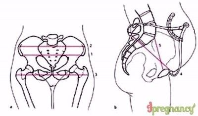 схема розмірів жіночого таза