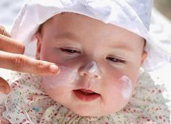 лущення шкіри голови у новонароджених