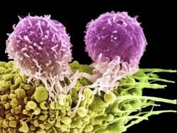 У дитини підвищені лімфоцити
