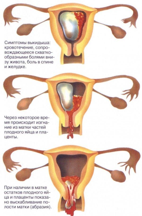 Загроза переривання вагітності (викидня) на ранніх термінах