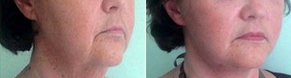 зволожуюча маска для нормальної шкіри - рецепти