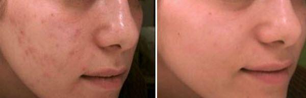 зволожуюча комбіновану шкіру обличчя маска - рецепти