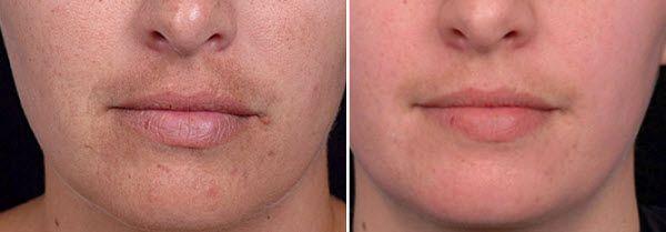 зволожуюча суху шкіру обличчя маска - рецепти