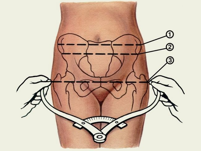 Схема вузького таза у жінки